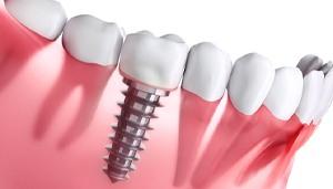 How dental implants work?